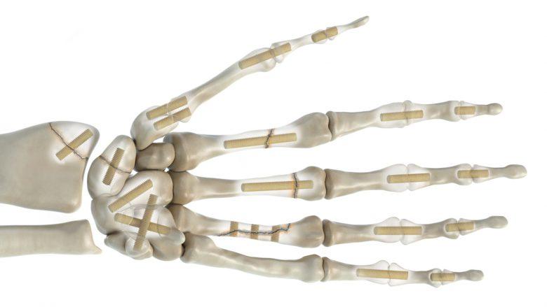 Knochenschrauben im Einsatz. © Surgebright